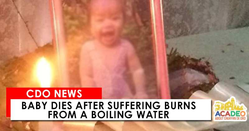 Baby Dies after burns from boiling water