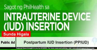 Postpartum IUD Insertion (PPIUD)